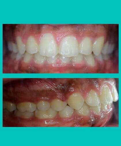 anterior-crossbite-treatment-image-after